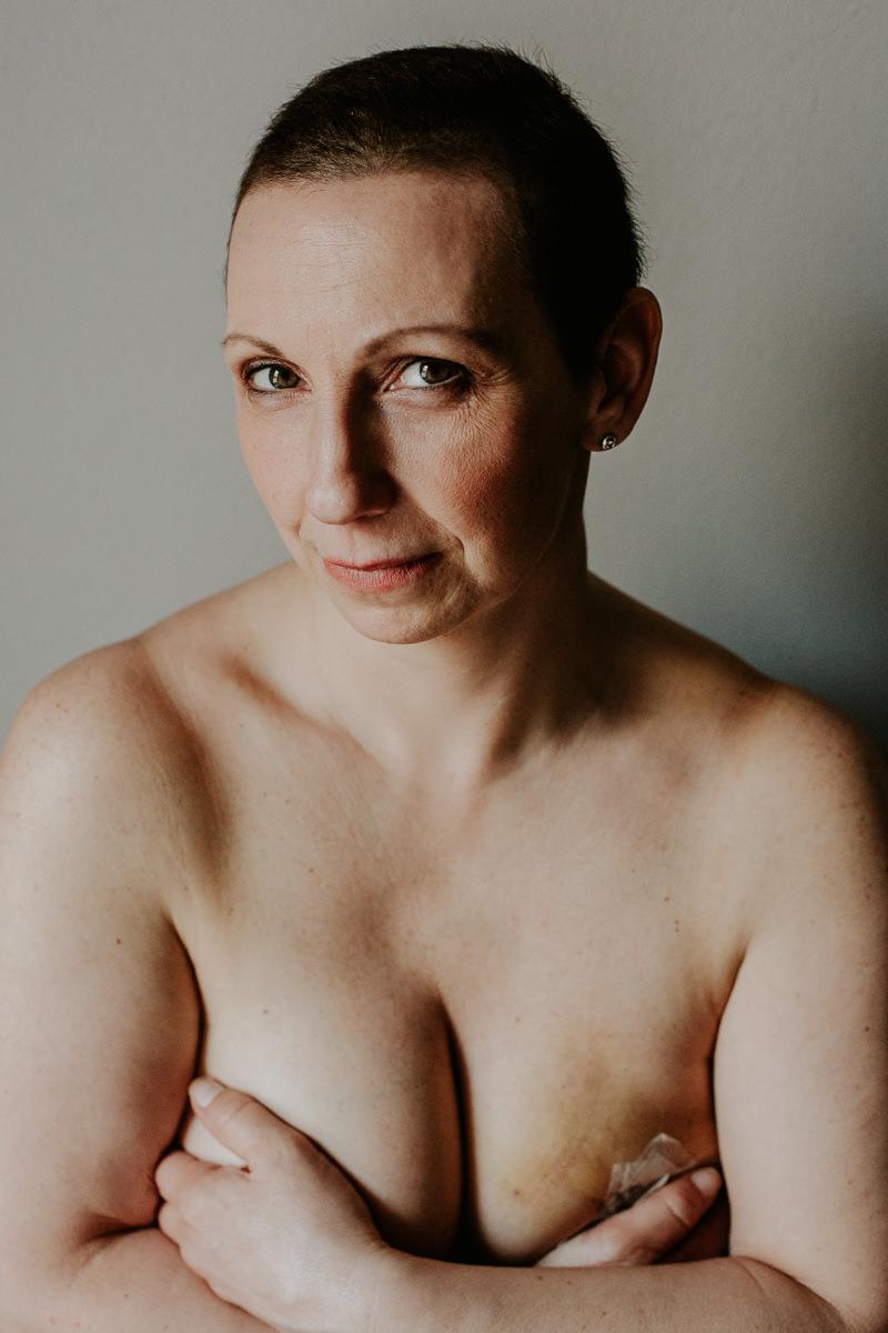 lotta al tumore al seno (4)