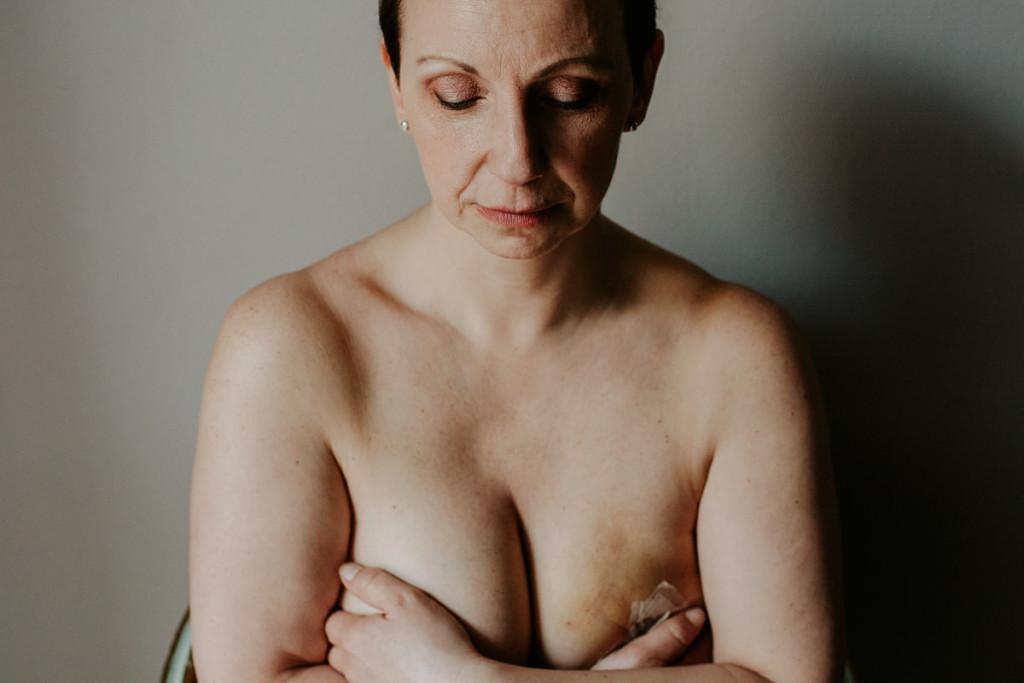 lotta al tumore al seno (52)